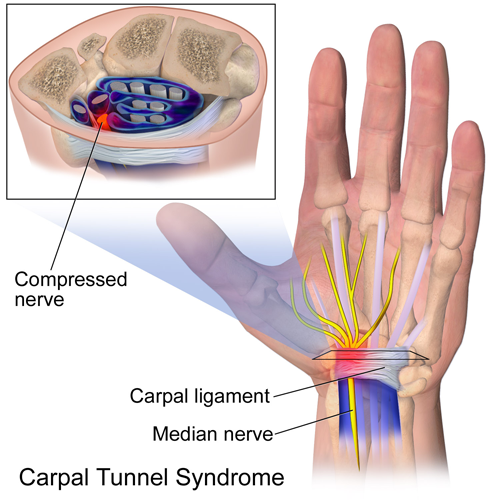 Carpal_Tunnel_Syndrome1
